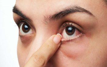 اصابات العين الاسعافات الاولية