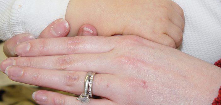 خطورة الكاروتينيميا على الاطفال