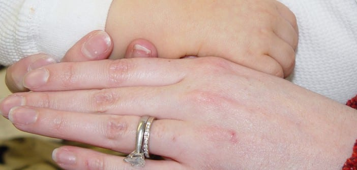 ما معني الكاروتينيميا وما هي خطورة الكاروتينيميا على الاطفال ؟