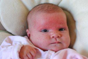 الحساسية عند الاطفال اكزيما الجلد