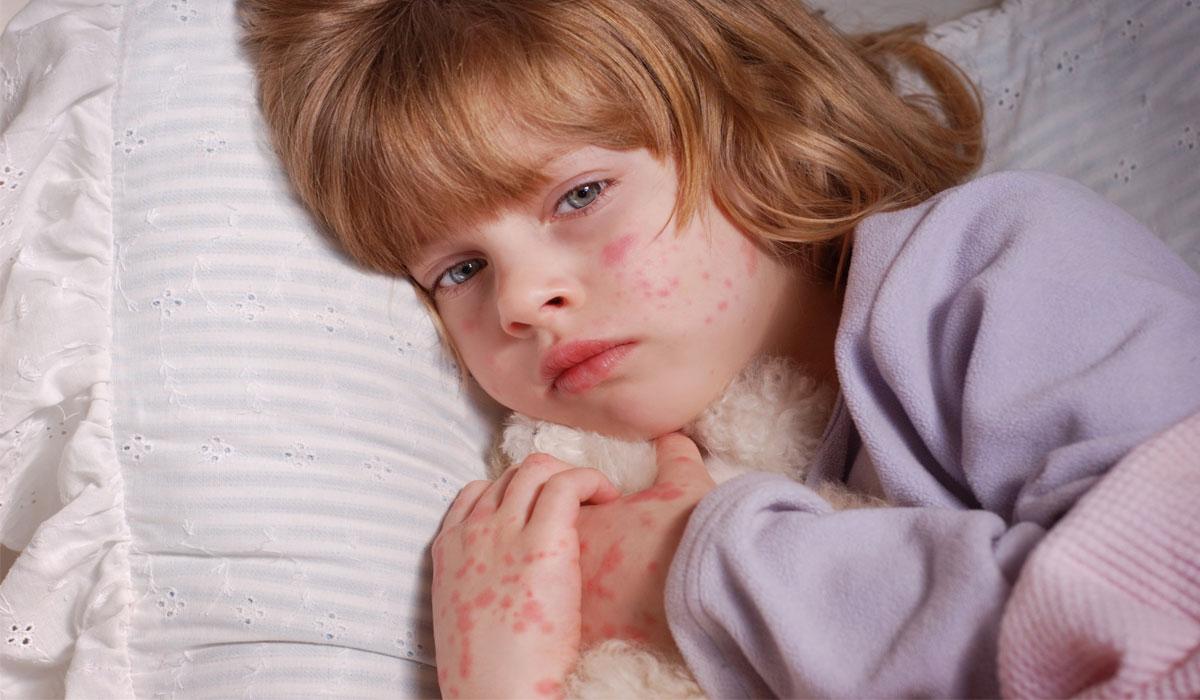 Photo of الحساسية عند الاطفال اكزيما الجلد