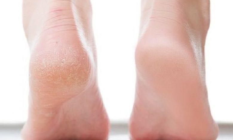 علاج تشقق القدمين بوصفات طبيعية سهلة