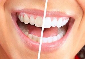 الدليل الكامل في تنظيف الاسنان بطريقة سليمة