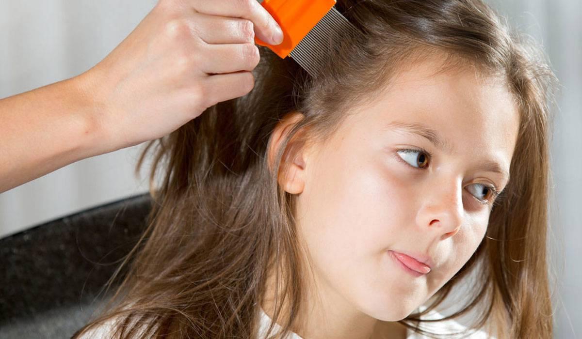 Photo of علاج القمل عند الاطفال والوقاية من حشرات الرأس