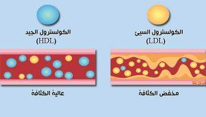كيف نتجنب ارتفاع الكولسترول