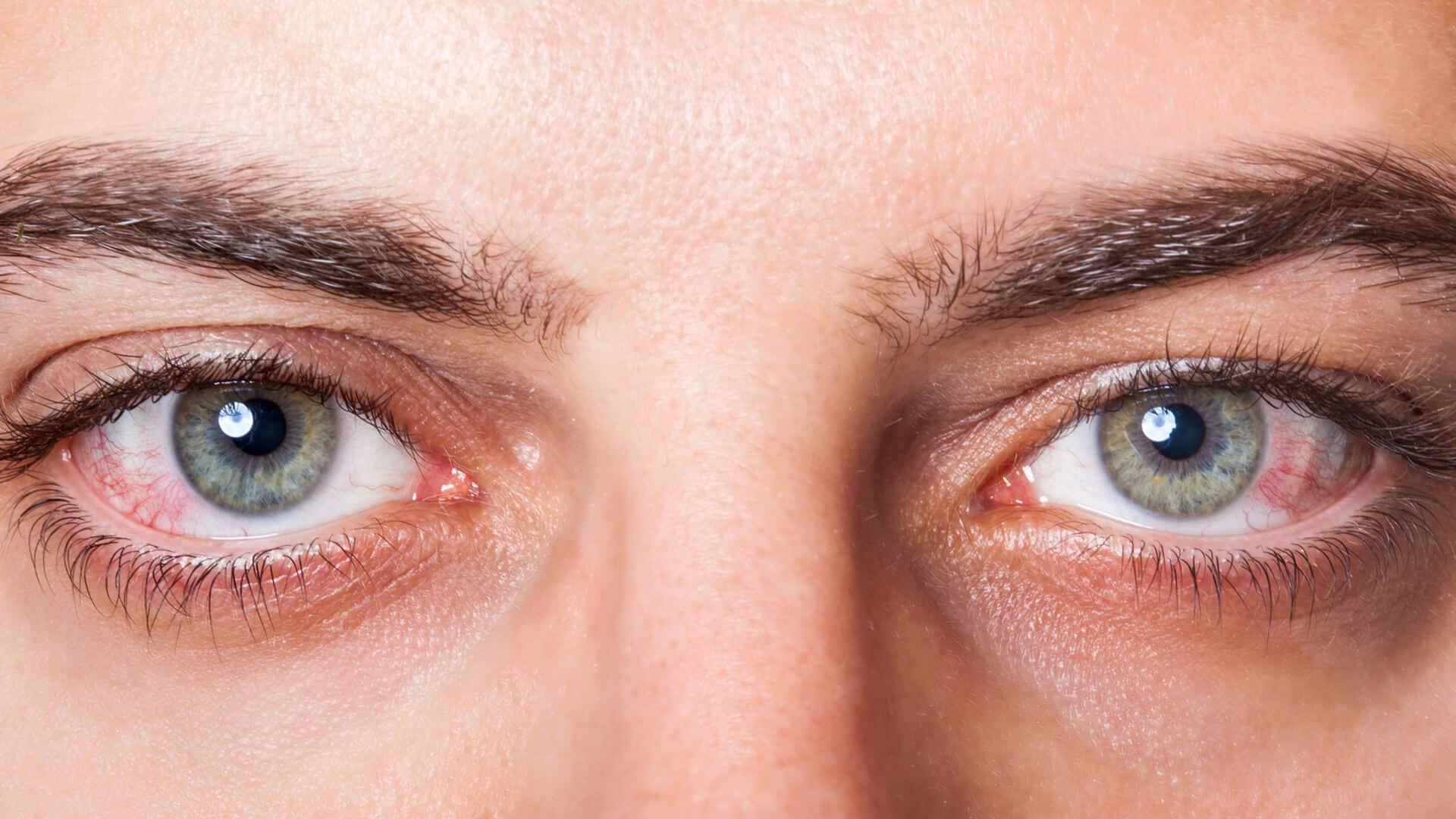 Photo of امراض العين وعلاجها بإستخدام تقنيات حديثة