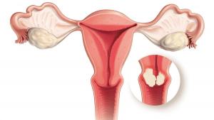 سرطان عنق الرحم أسبابه وأعراضه ونصائح للوقاية