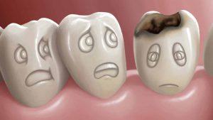 اطعمة لصحة الاسنان وبياضها والوقاية من التسوس