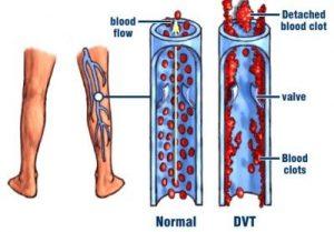 الفرق بين الجلطة وتجلط الدم