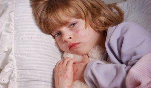 اطعمة تسبب الحساسية للاطفال وبدائلها