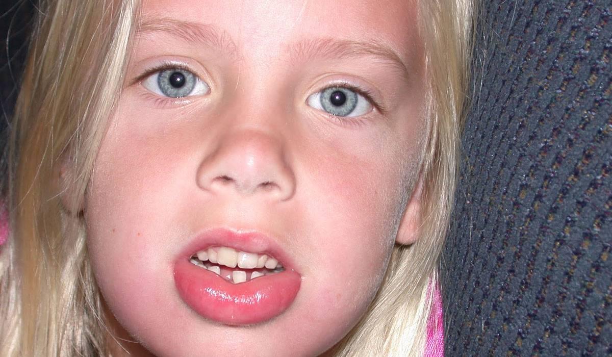 Photo of انواع التورمات في الاطفال وكيف تظهر اعراضها وطرق علاجها