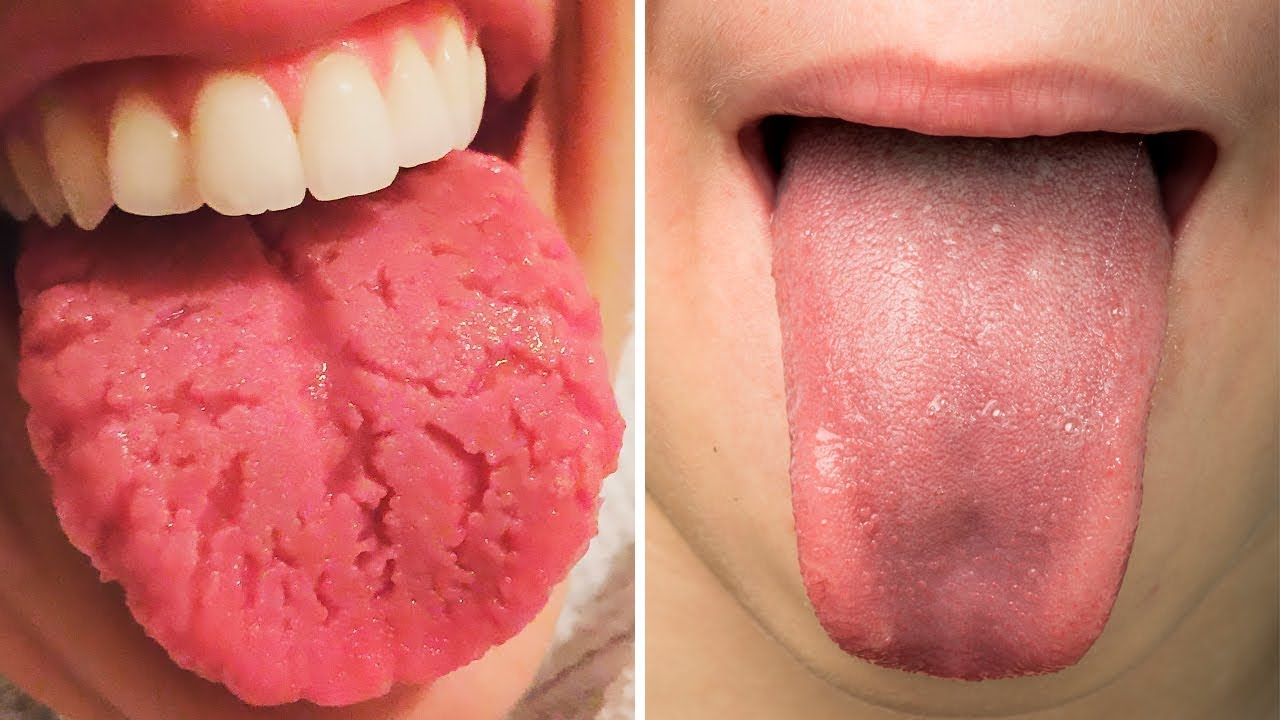 Photo of شكل اللسان و لونه يكشف عن الأمراض والحالة الصحية للإنسان