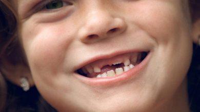 Photo of حقائق هامة عن مرحلة تبديل الاسنان اللبنية للطفل