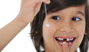حقائق هامة عن مرحلة تبديل الاسنان اللبنية للطفل