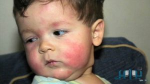 هناك اطعمة تسبب الحساسية للطفل كيف عليك تفاديها