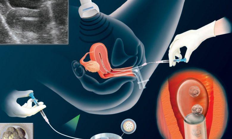 الحقن المجهري متى يكون هو الحل للإنجاب ؟