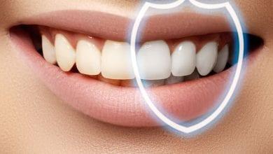Photo of طريقة طبيعية لازالة جير الاسنان وتكون بيضاء مثل اللؤلؤ