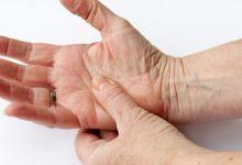 Photo of التهاب المفاصل والخشونه