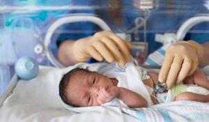 مضاعفات الولادة المبكرة وكيف تتجنبيها
