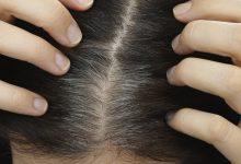 Photo of خلطات طبيعية لانبات الشعر الخفيف في مقدمة الراس