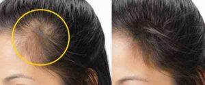 خلطات طبيعية لانبات الشعر الخفيف