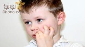 خطورة تنفس الطفل من الفم وعادة قضم الاظافر