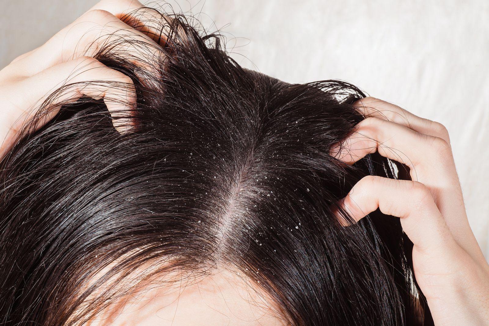 علاج قشرة الشعر في فصل الشتاء