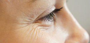 وصفات طبيعية لعلاج الكلف والبقع السوداء