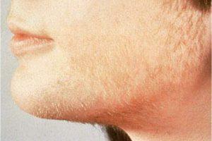 مشاكل نمو الشعر الزائد عند البنات و السيدات و مرض تكيس المبايض
