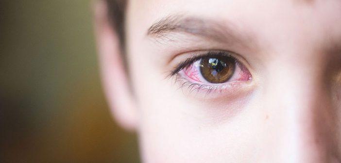 حساسية العين الموسمية