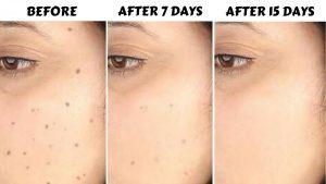 فوائد ماء الارز التجميلية للبشرة والشعر