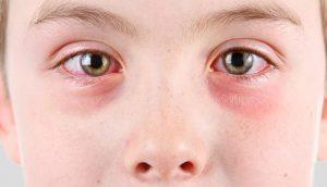 حماية الأطفال من امراض العيون فى المدارس