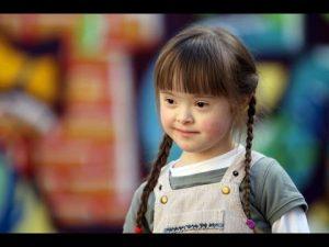 الاطفال ذوي الإحتياجات الخاصة وطرق العناية بهم