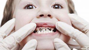 كيف تحمي طفلك من مرض الطباشيرية لأسنان الاطفال ؟