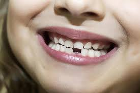 كيف تحمي طفلك من مرض الطباشير لأسنان الاطفال ؟