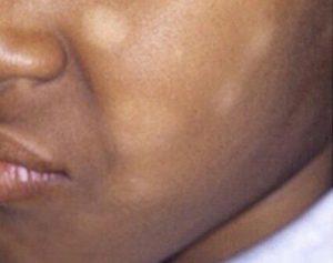 البقع البيضاء عند الأطفال أسبابها وطرق العلاج صحة الطفل فورنونو