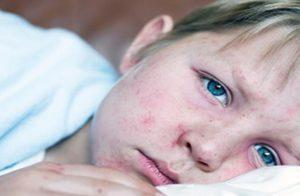 اعراض نقص الصفائح الدموية وأسباب النقص وعلاج نقص الصفائح الدموية