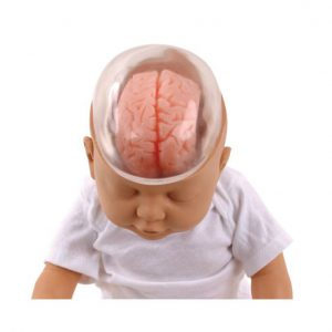 كل شئ عن متلازمة هز الرضيع