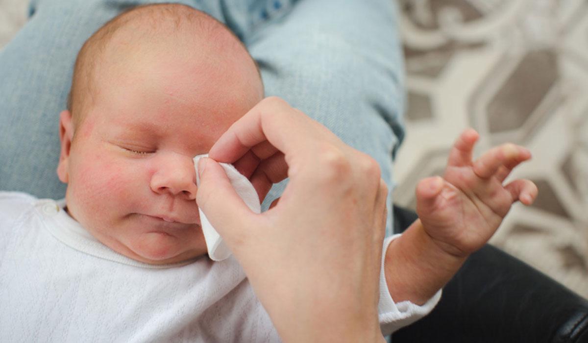 Photo of مشكلة انسداد القناة الدمعية عند الرضع وطرق علاجها