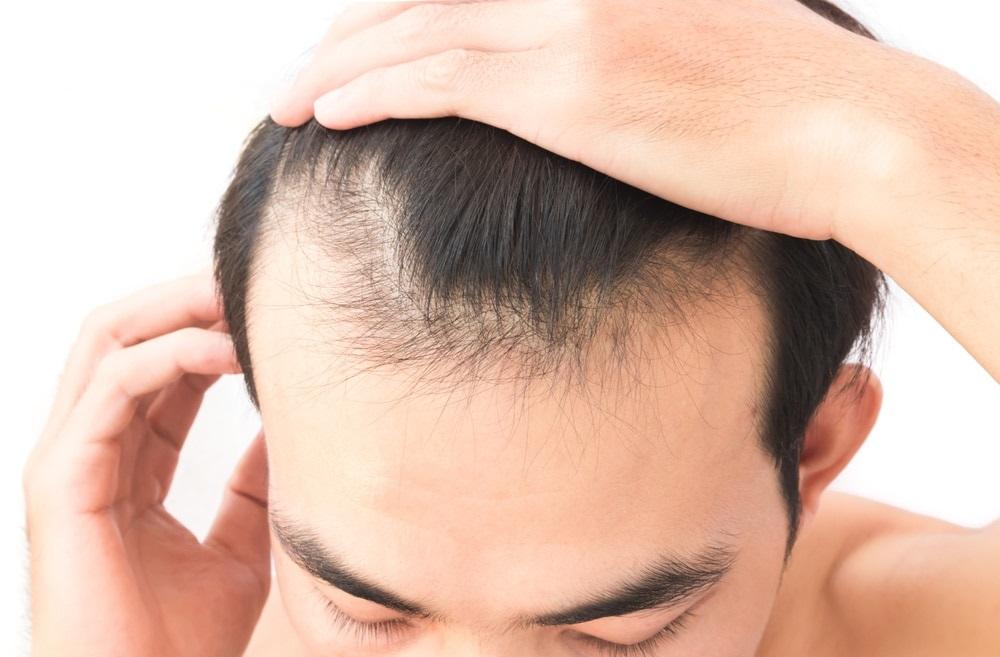 علاج تساقط الشعر قبل الصلع