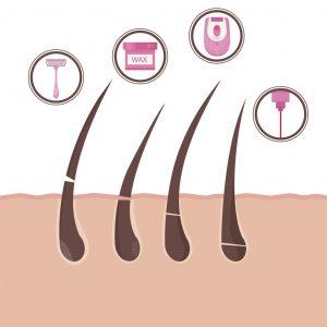 جسم المراة المشعر (الشعرانية) الأسباب وطرق العلاج