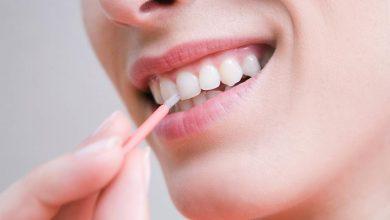Photo of نصائح لحماية الاسنان من التآكل الحمضي
