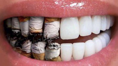 Photo of مخاطر و اضرار التدخين على الفم والاسنان