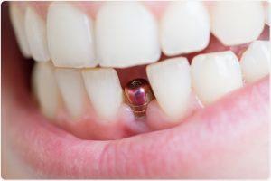 عملية زراعة الاسنان و ما هي مراحل غرس الاسنان