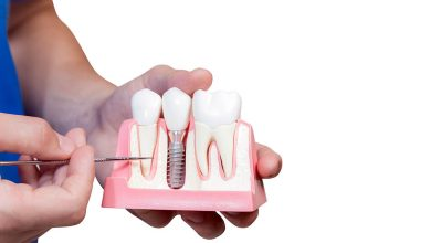 Photo of عملية زراعة الاسنان و ما هي مراحل غرس الاسنان